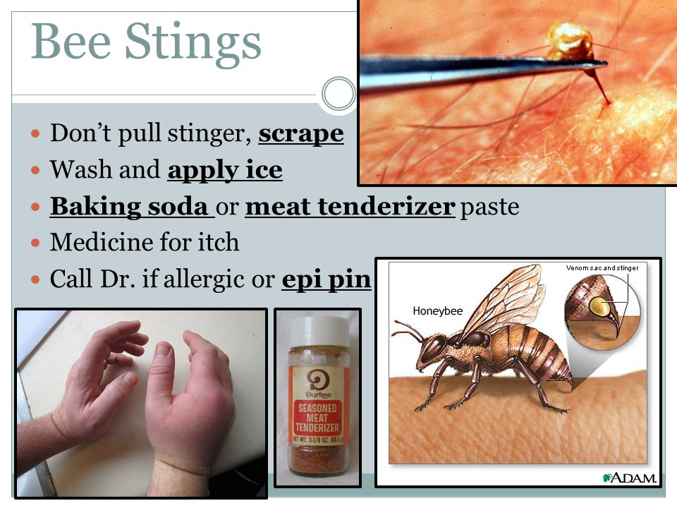Bee Stings Don't pull stinger, scrape Wash and apply ice Baking soda or meat tenderizer paste Medicine for itch Call Dr. if allergic or epi pin