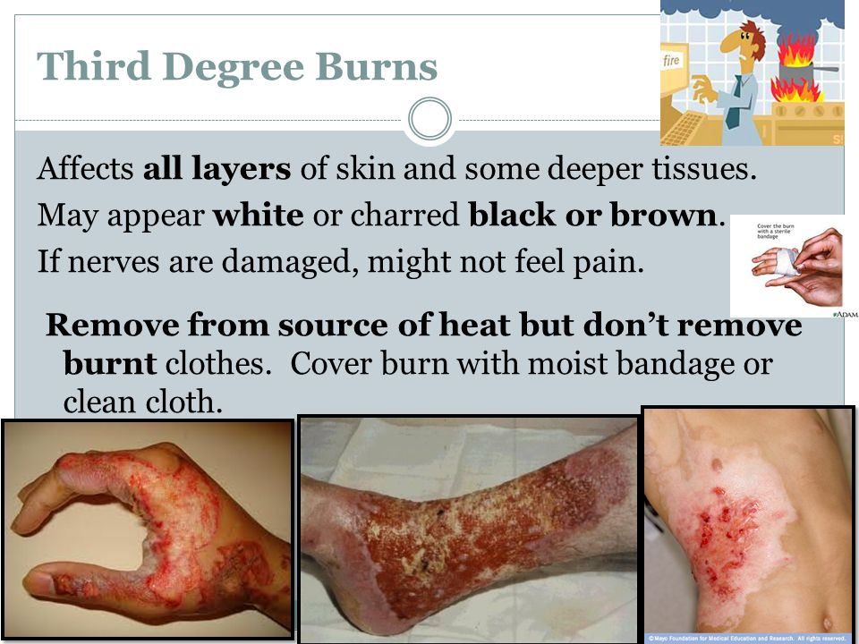 Third Degree Burns Affects all layers of skin and some deeper tissues. May appear white or charred black or brown. If nerves are damaged, might not fe