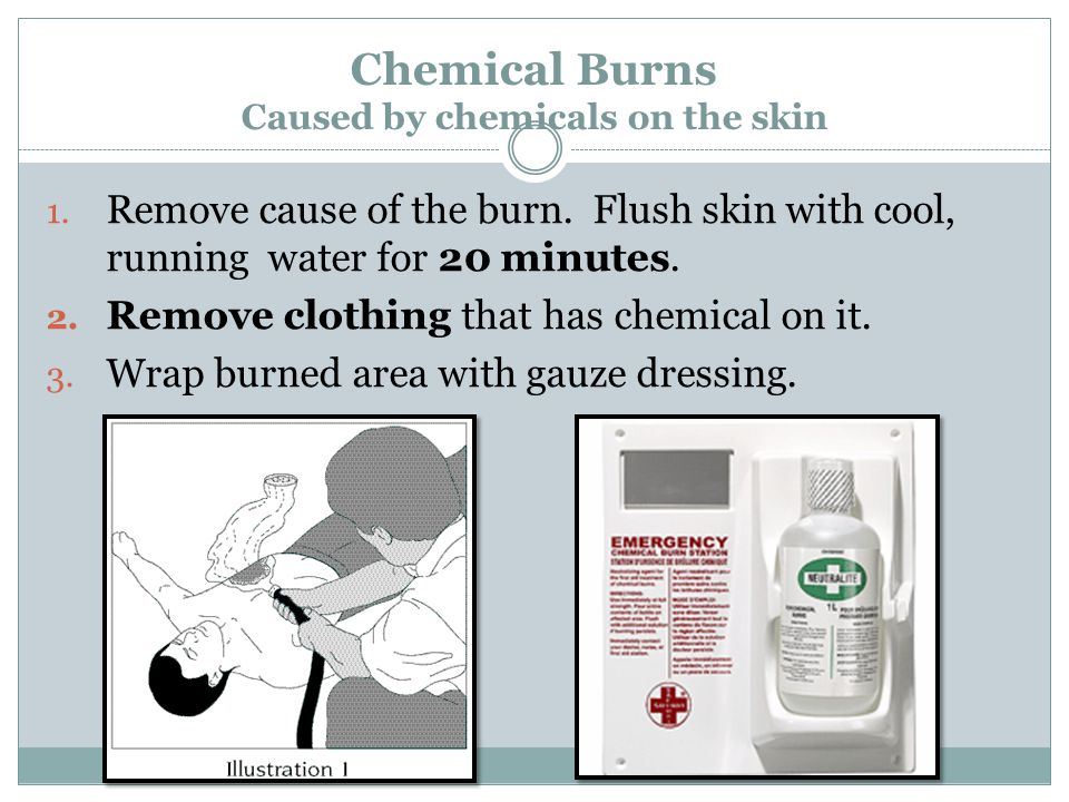 Chemical Burns Caused by chemicals on the skin 1. Remove cause of the burn. Flush skin with cool, running water for 20 minutes. 2. Remove clothing tha