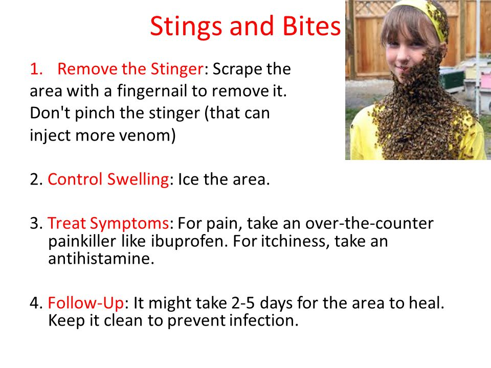 Stings and Bites 1.Remove the Stinger: Scrape the area with a fingernail to remove it. Don't pinch the stinger (that can inject more venom) 2. Control