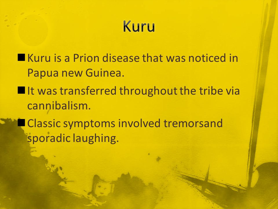 Kuru is a Prion disease that was noticed in Papua new Guinea. It was transferred throughout the tribe via cannibalism. Classic symptoms involved tremo