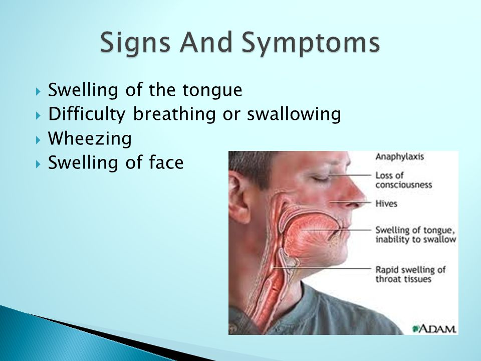  Swelling of the tongue  Difficulty breathing or swallowing  Wheezing  Swelling of face