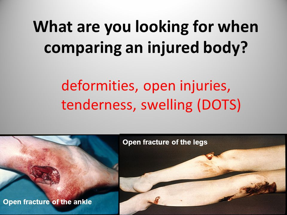 What are you looking for when comparing an injured body? deformities, open injuries, tenderness, swelling (DOTS) Open fracture of the ankle Open fract