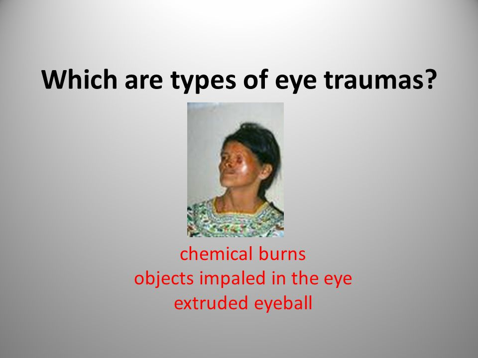 Which are types of eye traumas chemical burns objects impaled in the eye extruded eyeball