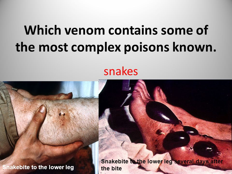 Which venom contains some of the most complex poisons known.