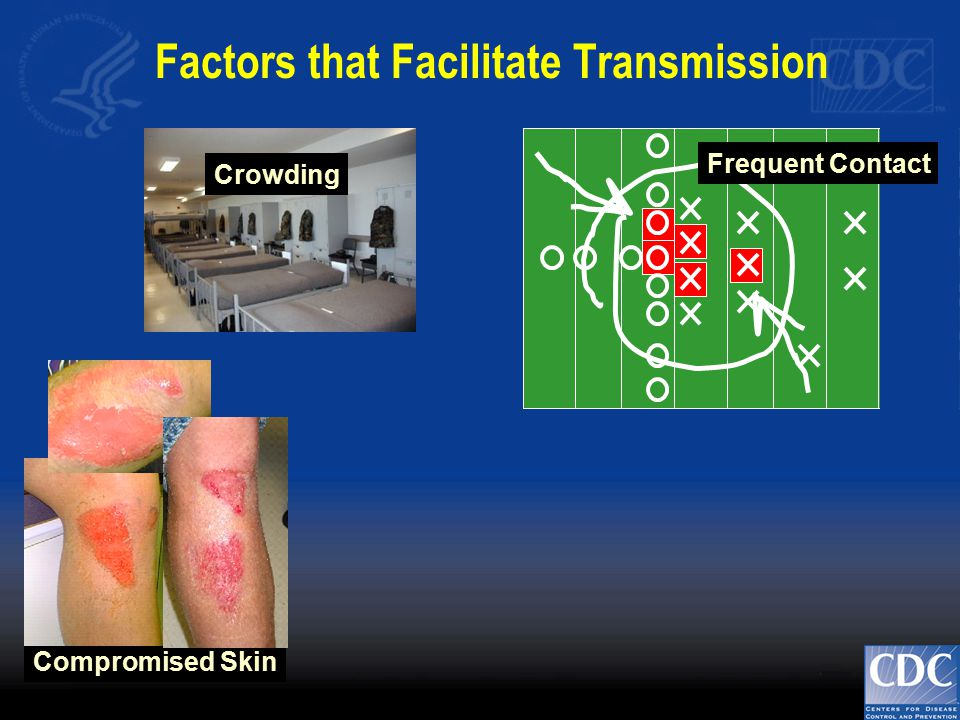 Frequent Contact Crowding Compromised Skin Factors that Facilitate Transmission