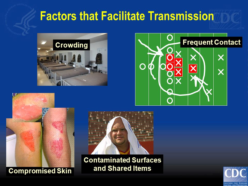 Frequent Contact Contaminated Surfaces and Shared Items Crowding Factors that Facilitate Transmission Compromised Skin