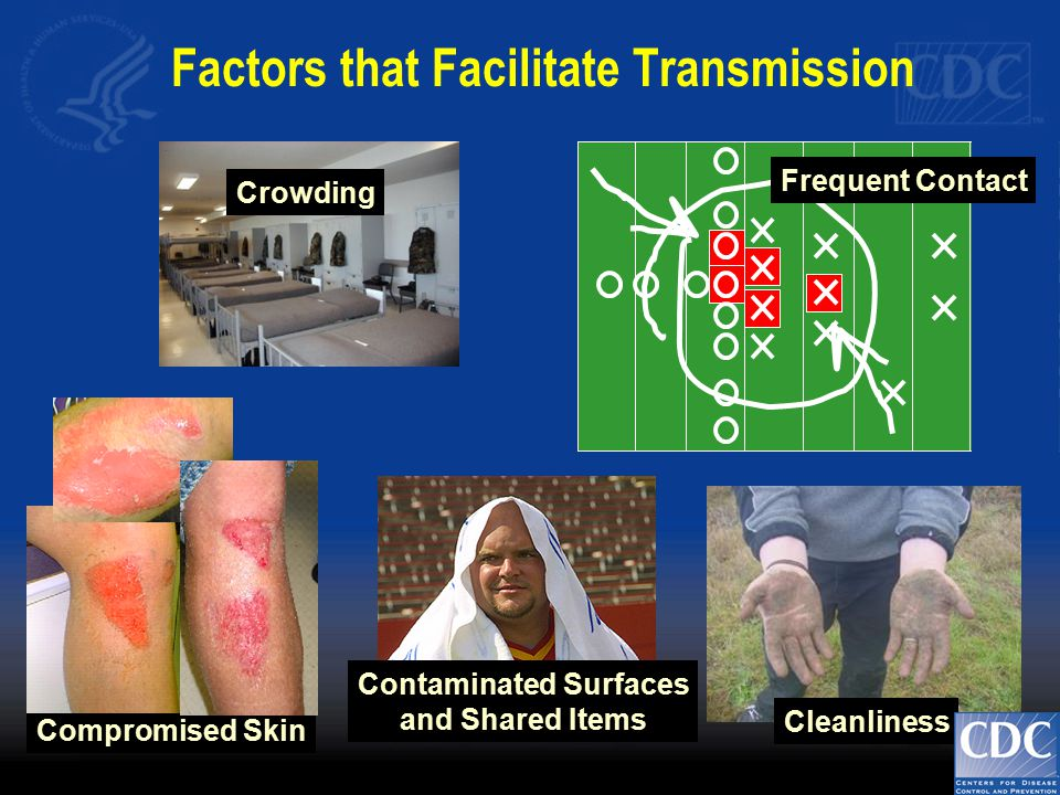 Frequent Contact Cleanliness Crowding Contaminated Surfaces and Shared Items Compromised Skin Factors that Facilitate Transmission