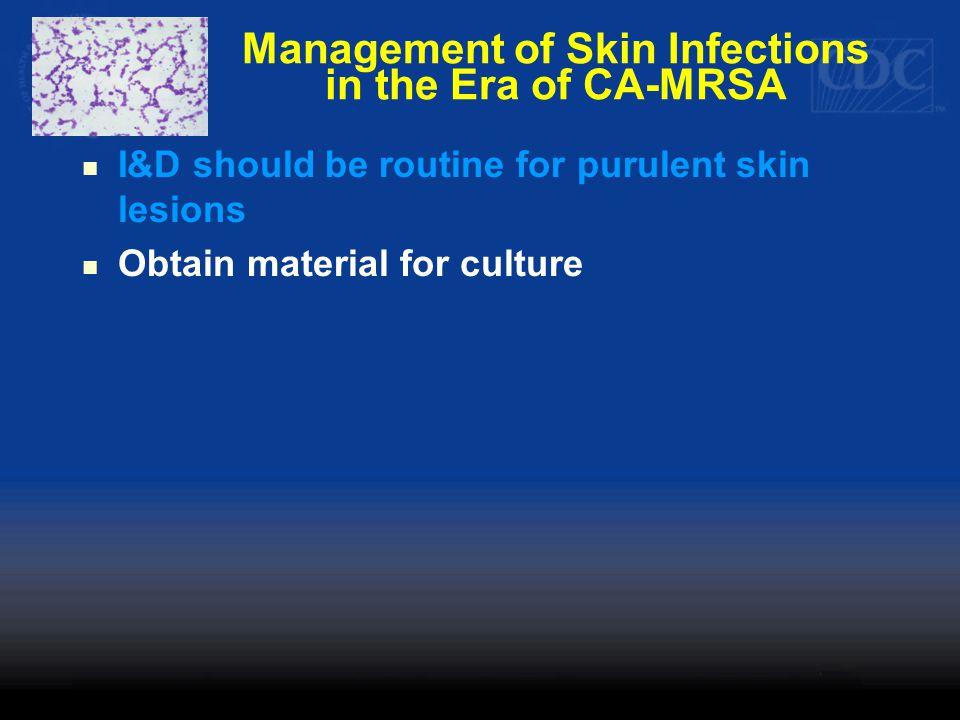 Management of Skin Infections in the Era of CA-MRSA I&D should be routine for purulent skin lesions Obtain material for culture