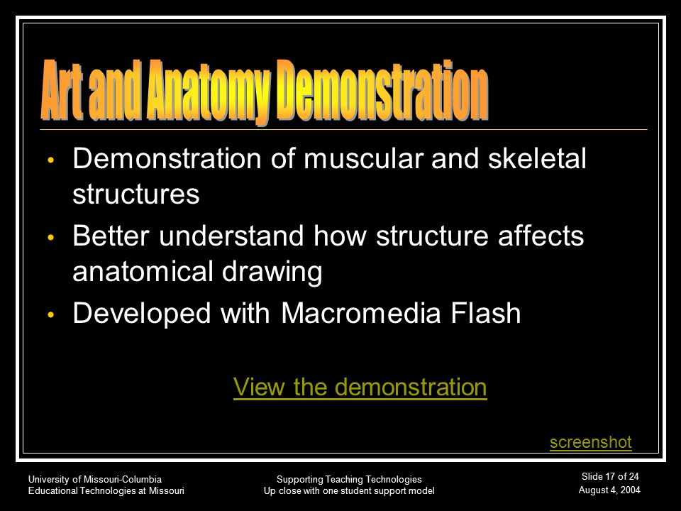 University of Missouri-Columbia Educational Technologies at Missouri August 4, 2004 Supporting Teaching Technologies Up close with one student support model Slide 17 of 24 Demonstration of muscular and skeletal structures Better understand how structure affects anatomical drawing Developed with Macromedia Flash View the demonstration screenshot