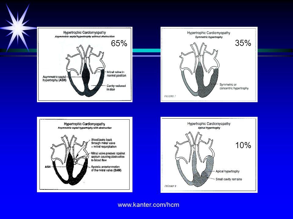 65% 35% 10% www.kanter.com/hcm