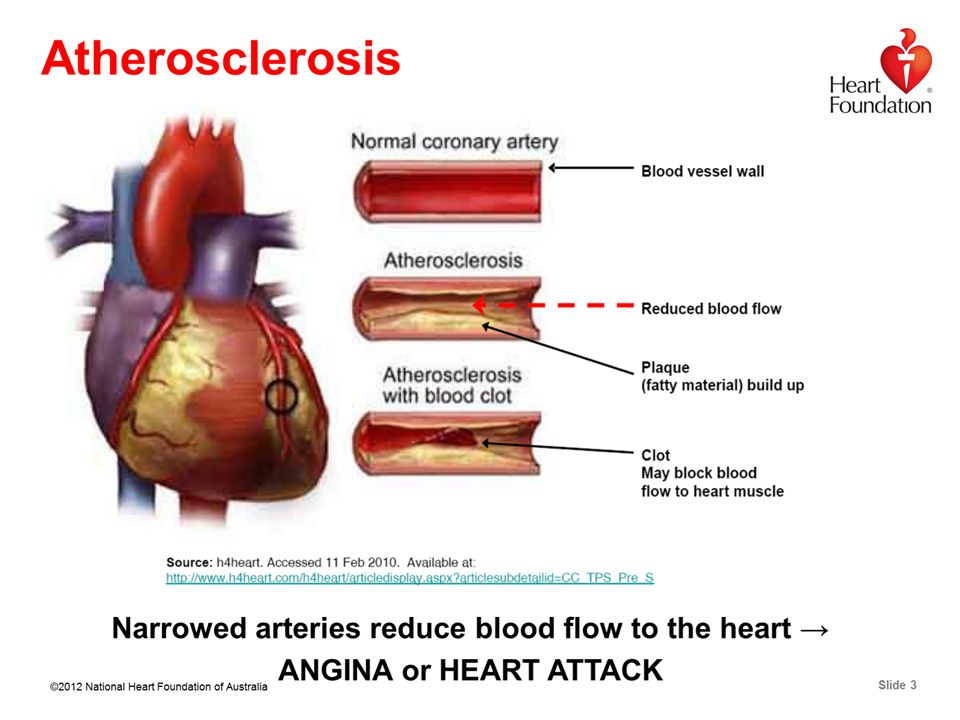 ©2012 National Heart Foundation of Australia Slide 3