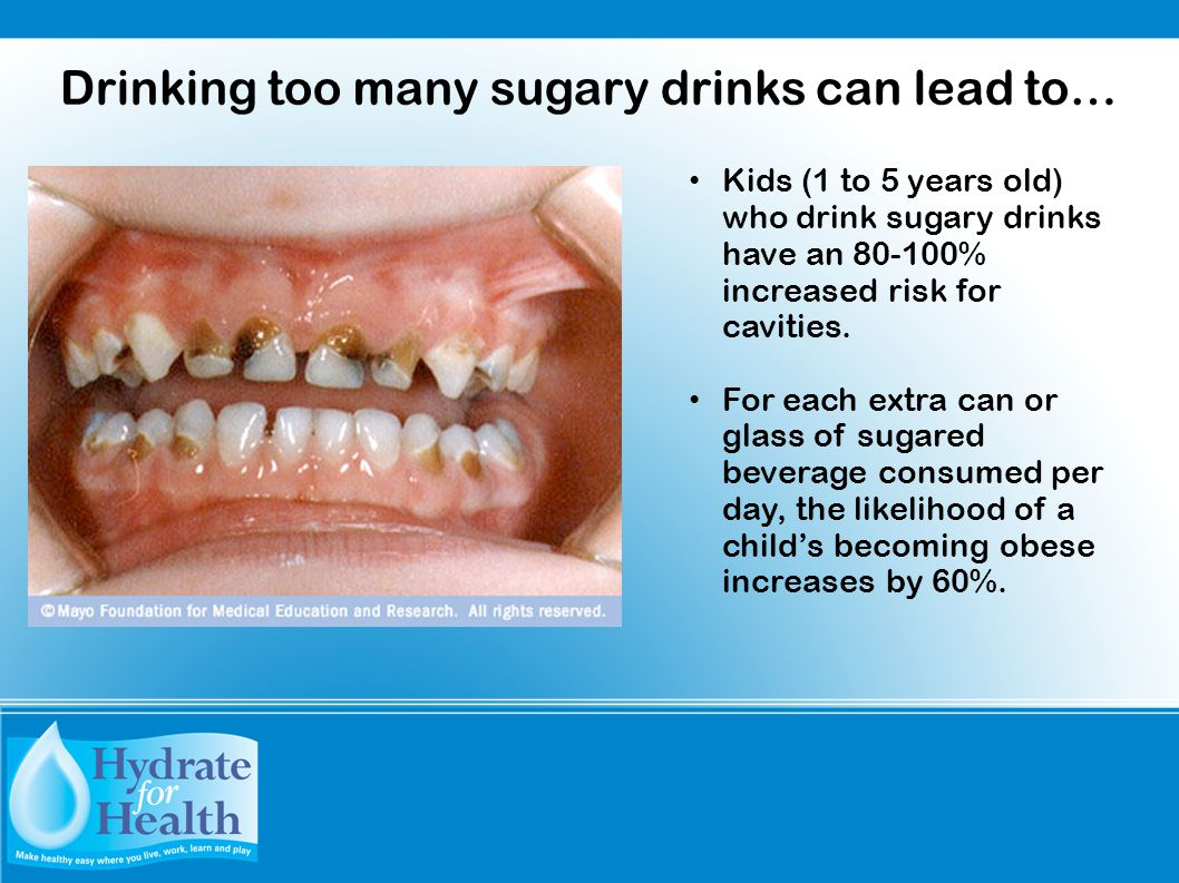 Kids (1 to 5 years old) who drink sugary drinks have an 80-100% increased risk for cavities. For each extra can or glass of sugared beverage consumed