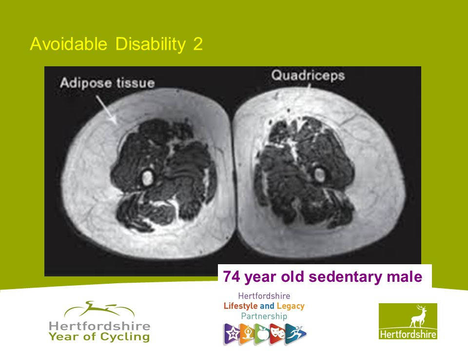 www.hertsdirect.org Avoidable Disability 2 74 year old sedentary male