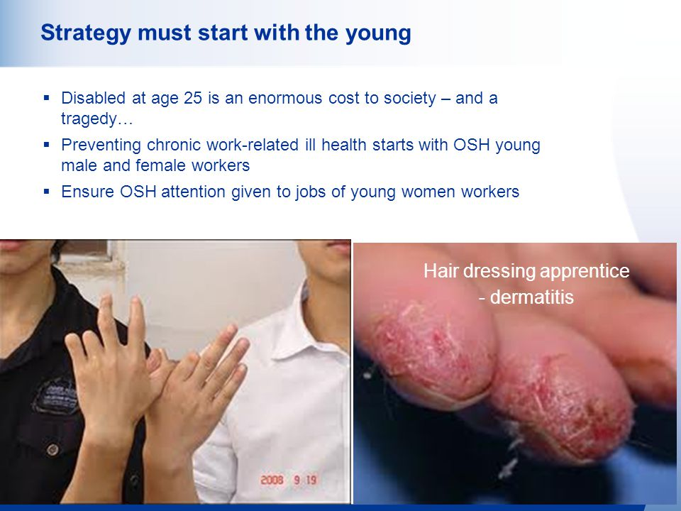 http://osha.europa.eu 10 Strategy must start with the young  Disabled at age 25 is an enormous cost to society – and a tragedy…  Preventing chronic work-related ill health starts with OSH young male and female workers  Ensure OSH attention given to jobs of young women workers Hair dressing apprentice - dermatitis