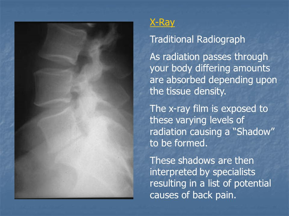 X-Ray Traditional Radiograph As radiation passes through your body differing amounts are absorbed depending upon the tissue density.