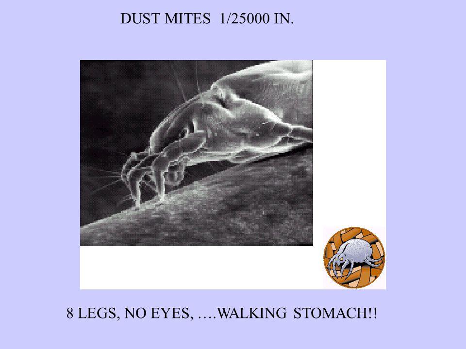 DUST MITES 1/25000 IN. 8 LEGS, NO EYES, ….WALKING STOMACH!!