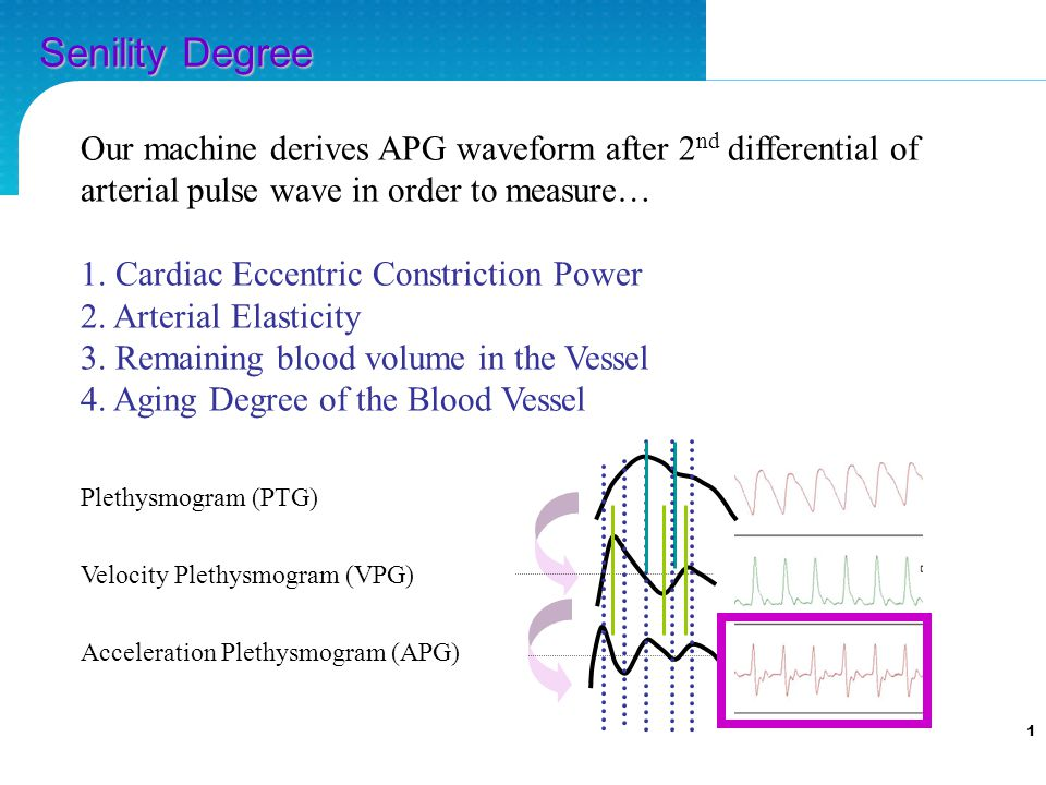 1 Our machine derives APG waveform after 2 nd differential of arterial pulse wave in order to measure… 1.