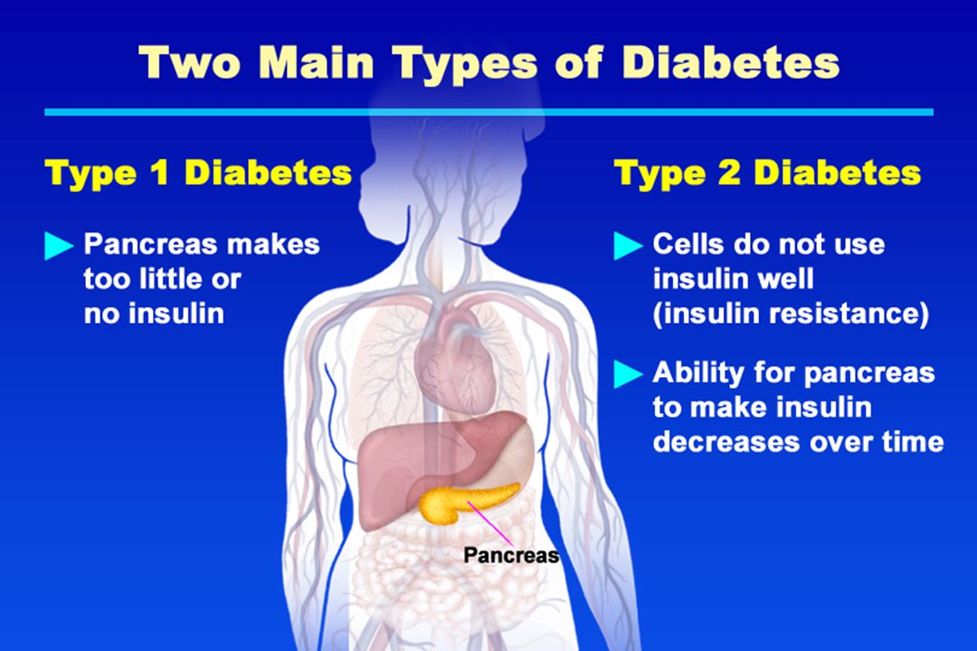 Two Main Types of Diabetes