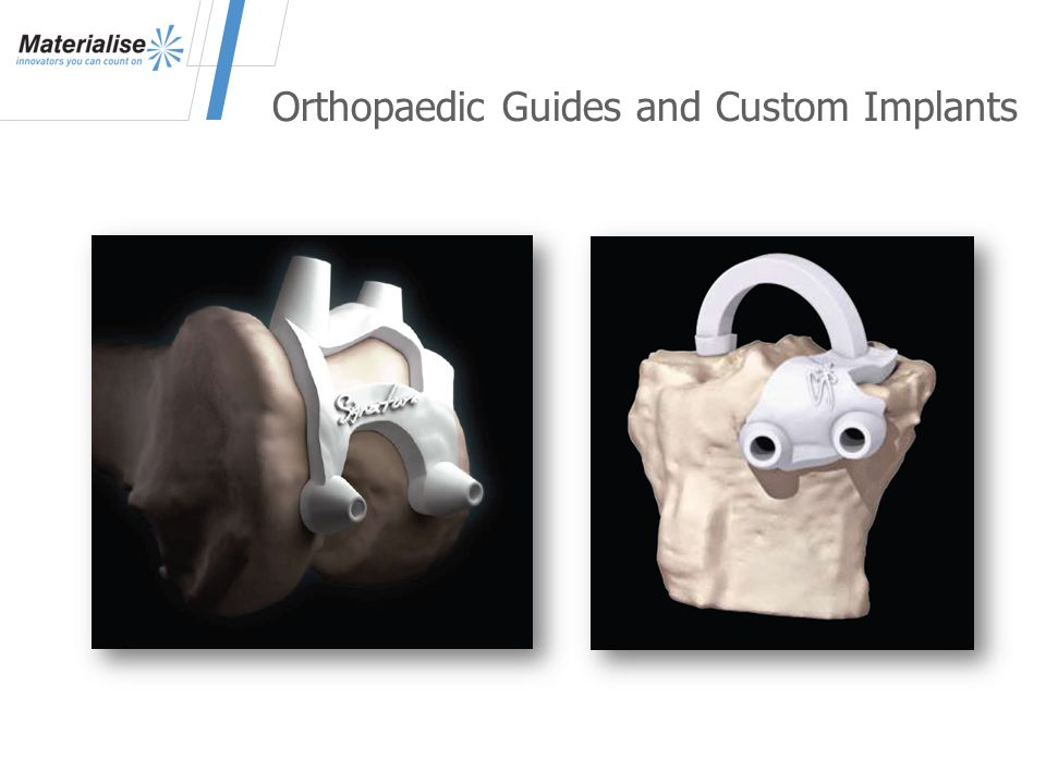 Orthopaedic Guides and Custom Implants