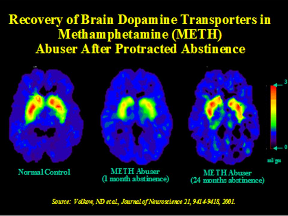 Dopamine is only part of the story Scientific research has shown that other neurotransmitter systems are also affected: ▫Serotonin  Regulates mood, sleep, etc.