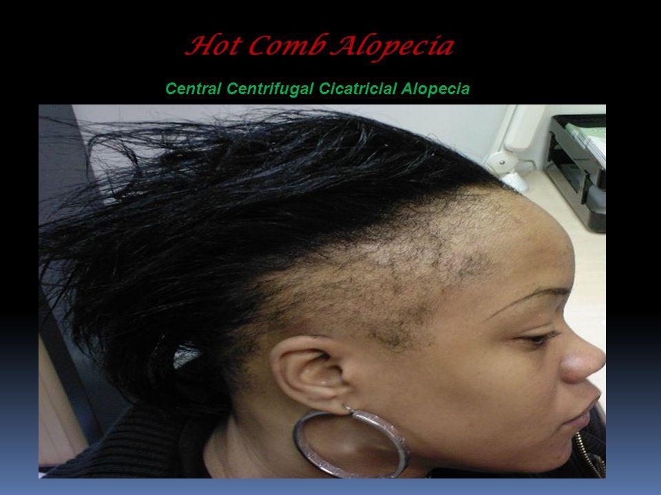 Hot Comb Alopecia Central Centrifugal Cicatricial Alopecia