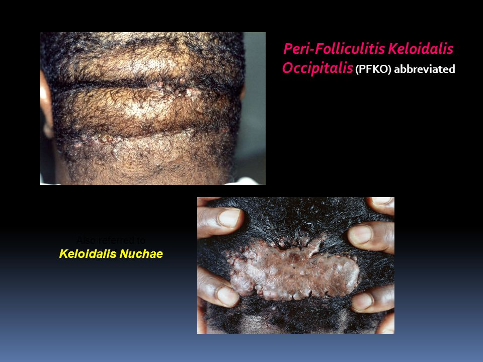 Peri-Folliculitis Keloidalis Occipitalis (PFKO) abbreviated Also referred to Keloidalis Nuchae