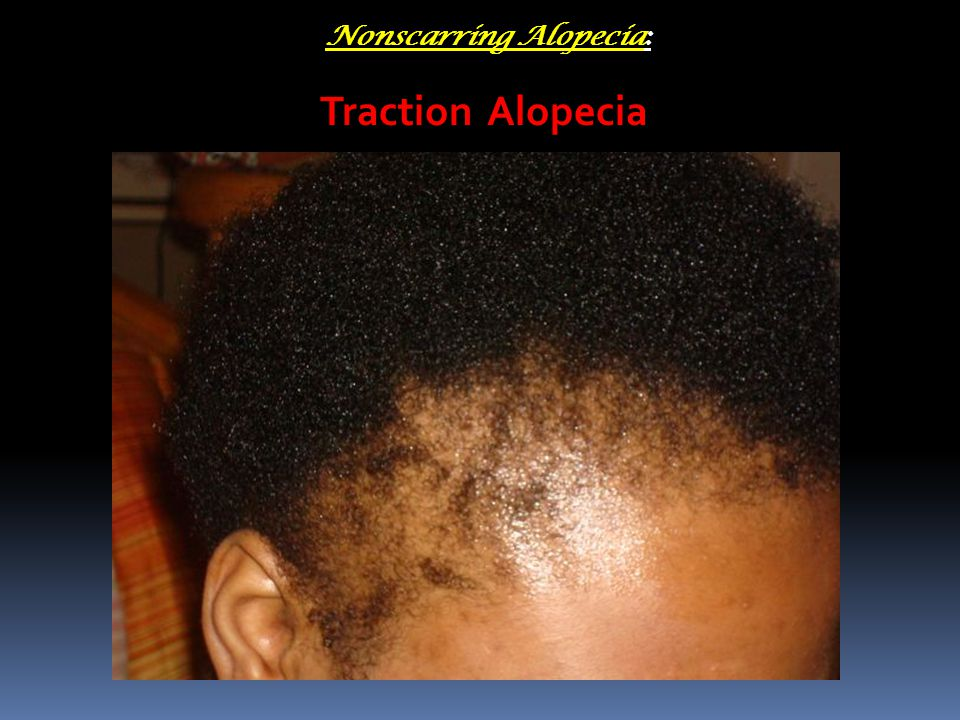 Traction Alopecia Nonscarring Alopecia: