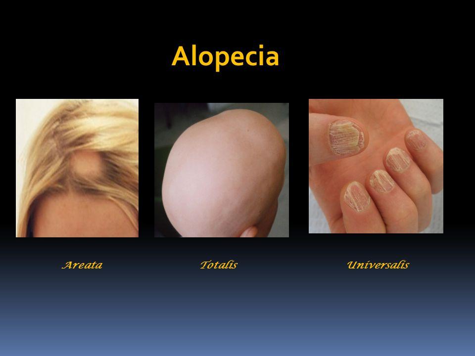 Areata Totalis Universalis Alopecia