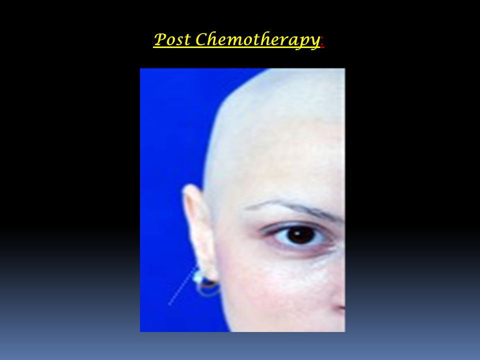 Post Chemotherapy :