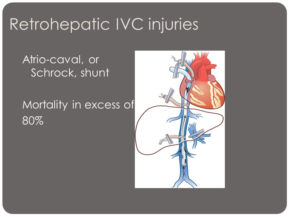 Retrohepatic IVC injuries Atrio-caval, or Schrock, shunt Mortality in excess of 80%