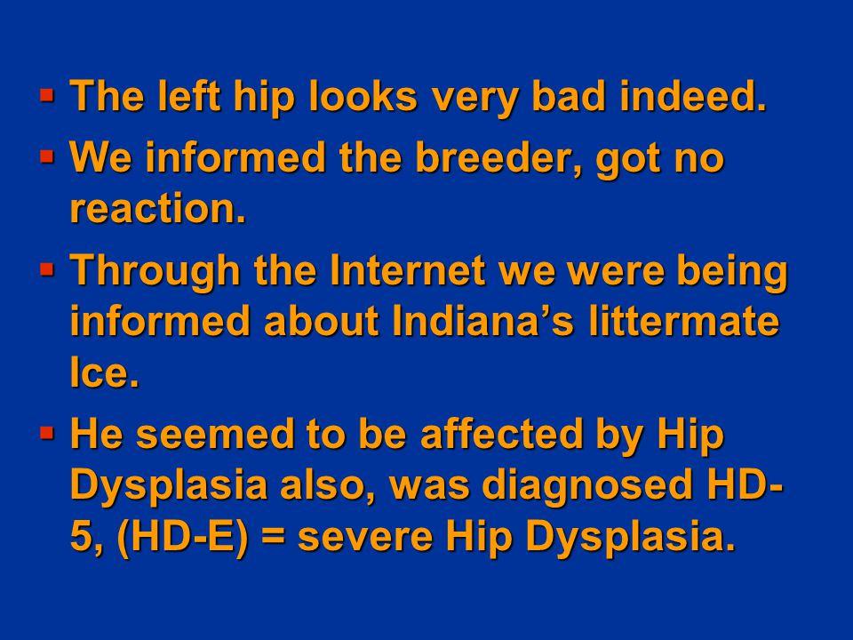 Unilateral Hip Dysplasia