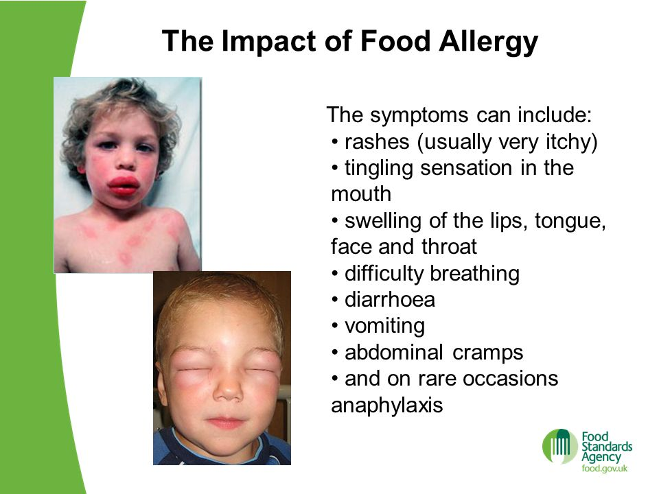 The Impact of Food Allergy The symptoms can include: rashes (usually very itchy) tingling sensation in the mouth swelling of the lips, tongue, face and throat difficulty breathing diarrhoea vomiting abdominal cramps and on rare occasions anaphylaxis