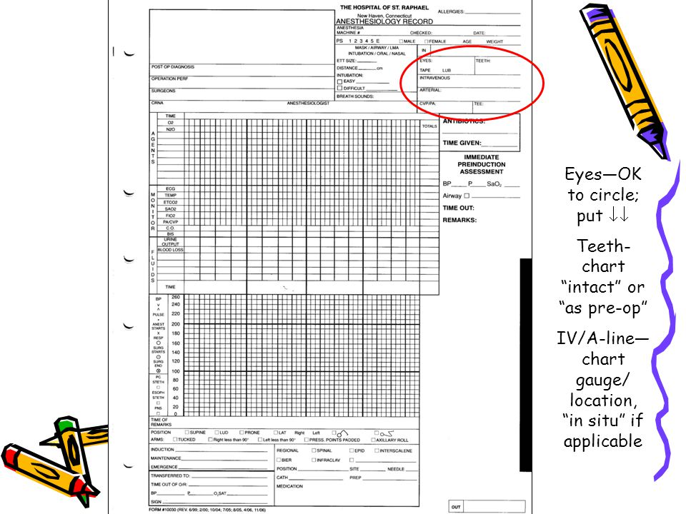 Eyes—OK to circle; put  Teeth- chart intact or as pre-op IV/A-line— chart gauge/ location, in situ if applicable