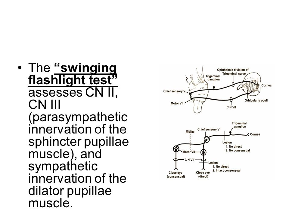 The swinging flashlight test assesses CN II, CN III (parasympathetic innervation of the sphincter pupillae muscle), and sympathetic innervation of the dilator pupillae muscle.