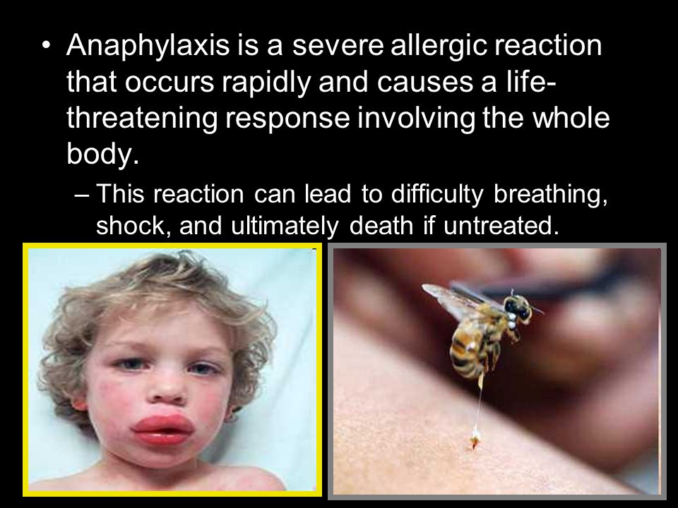 Anaphylaxis is a severe allergic reaction that occurs rapidly and causes a life- threatening response involving the whole body.