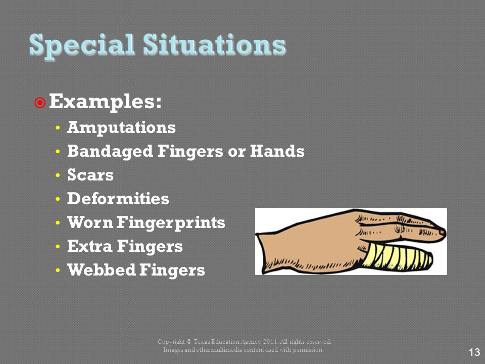  Examples: Amputations Bandaged Fingers or Hands Scars Deformities Worn Fingerprints Extra Fingers Webbed Fingers 13 Copyright © Texas Education Agen
