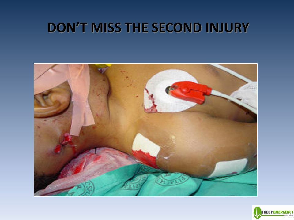 DON'T MISS THE SECOND INJURY