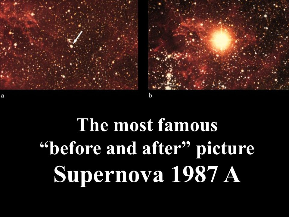 The most famous before and after picture Supernova 1987 A