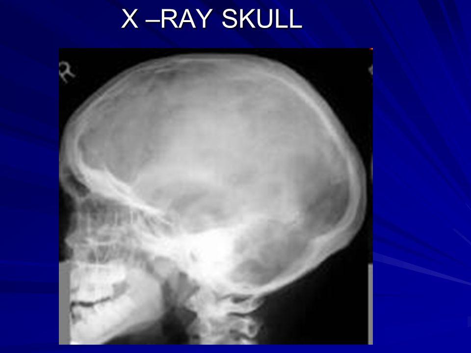 X –RAY SKULL