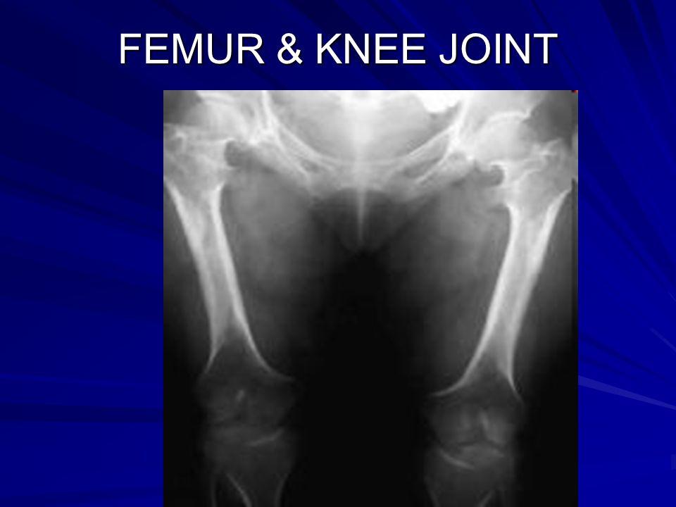 FEMUR & KNEE JOINT