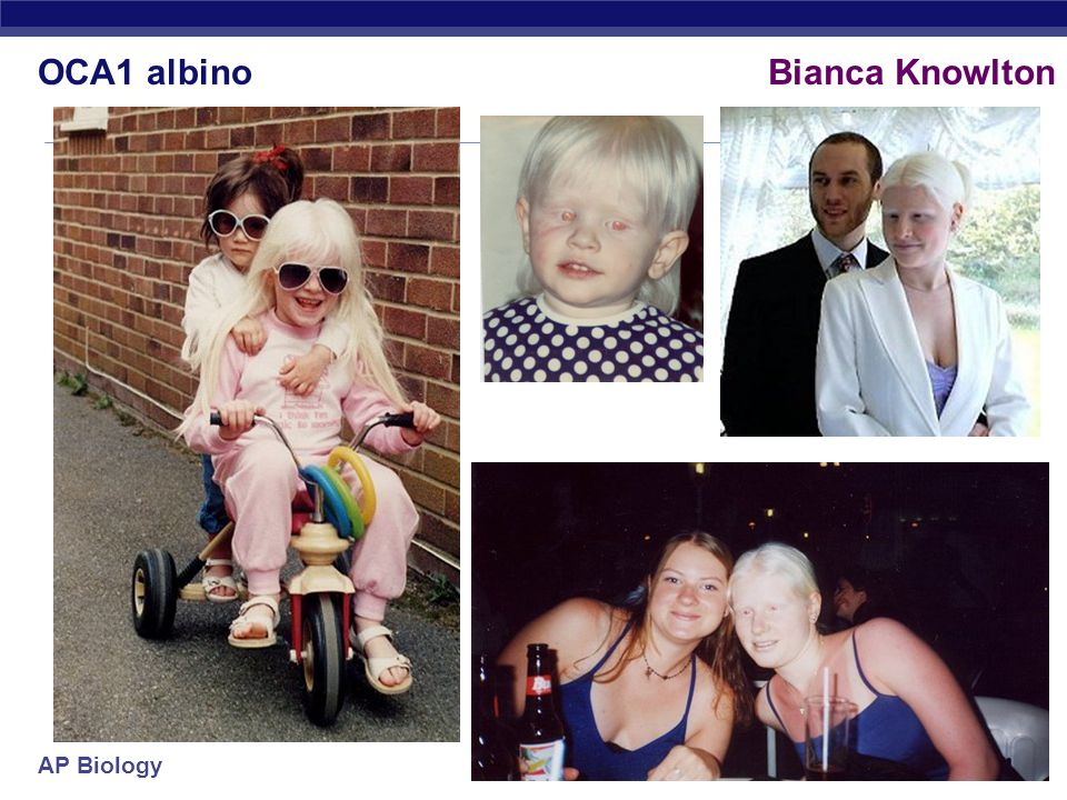 AP Biology enzyme Skin color: Albinism Johnny & Edgar Winter albino Africans  However albinism can be inherited as a single gene trait  aa = albino melanin = universal brown color tyrosine melanin albinism