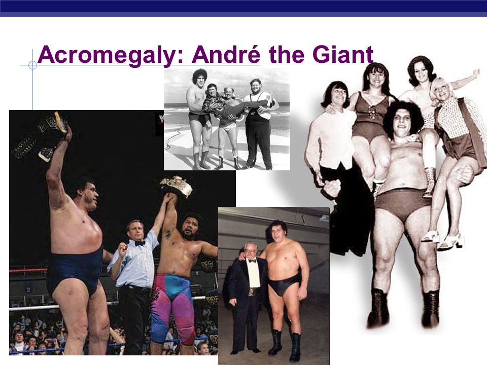 AP Biology Acromegaly: André the Giant