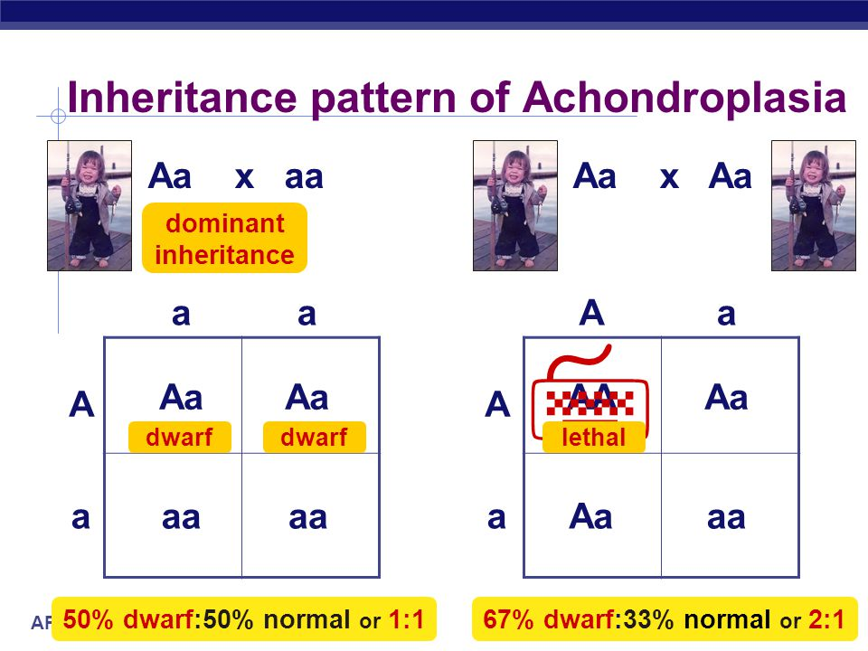 AP Biology Aa x aa Inheritance pattern of Achondroplasia aa A a Aa A a Aa x Aa Aa aa Aa 50% dwarf:50% normal or 1:1 AA aa Aa 67% dwarf:33% normal or 2:1 Aa  lethal dominant inheritance dwarf