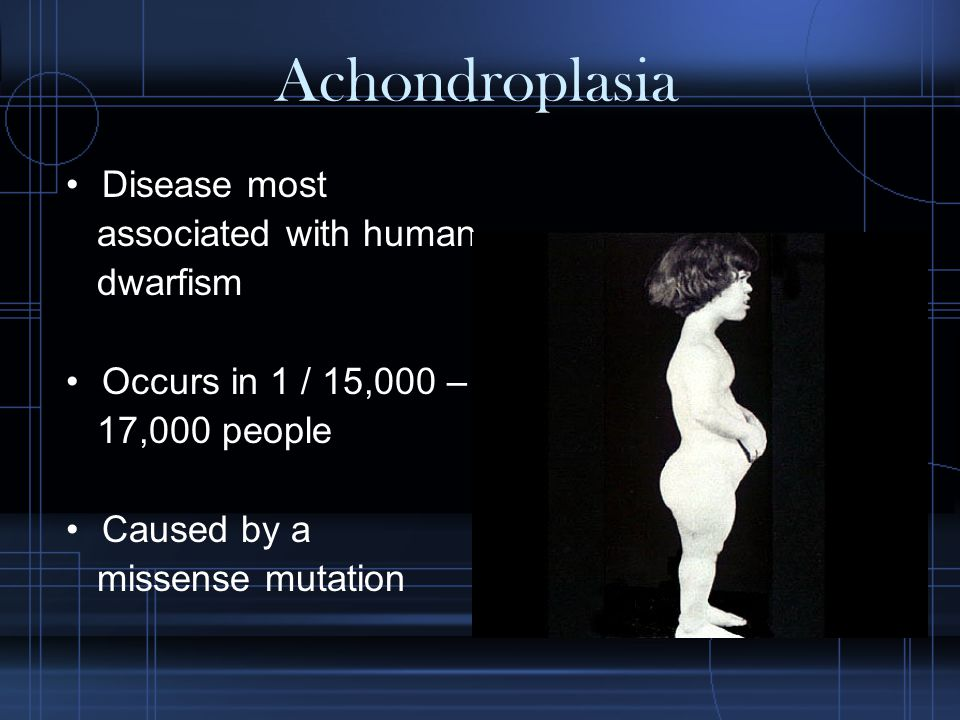 Achondroplasia Disease most associated with human dwarfism Occurs in 1 / 15,000 – 17,000 people Caused by a missense mutation