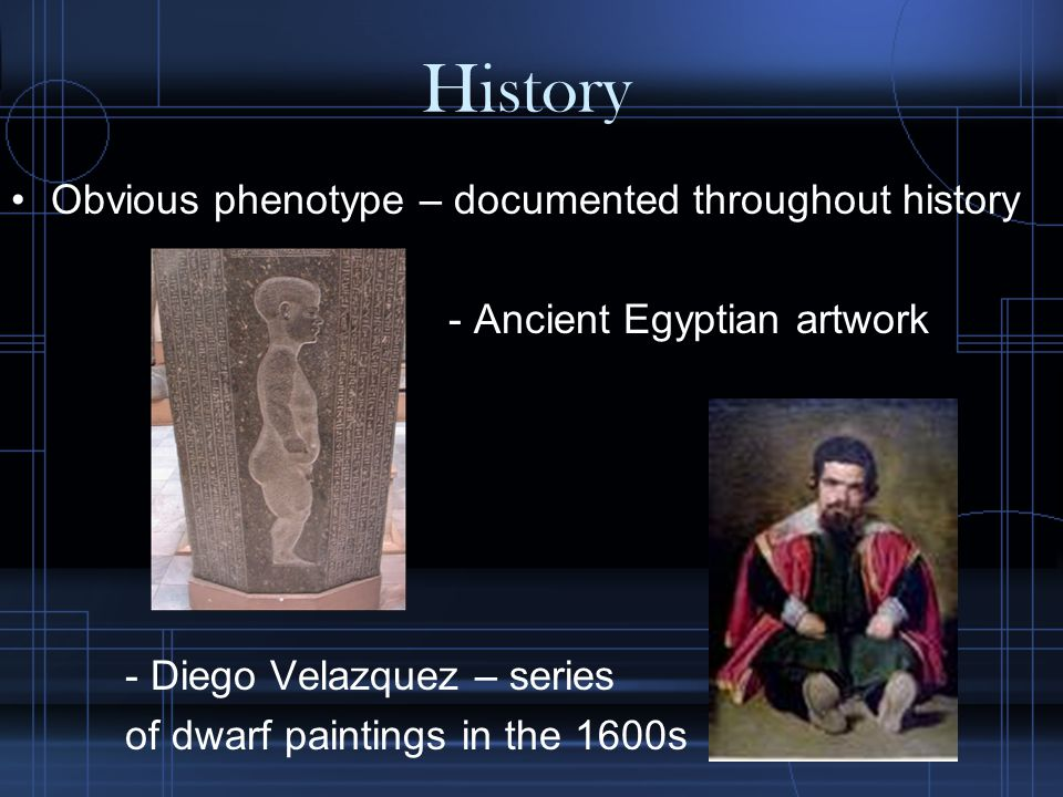 History Obvious phenotype – documented throughout history - Ancient Egyptian artwork - Diego Velazquez – series of dwarf paintings in the 1600s