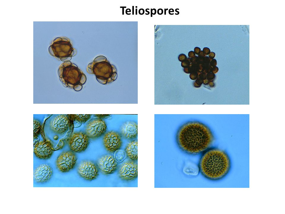 Teliospores