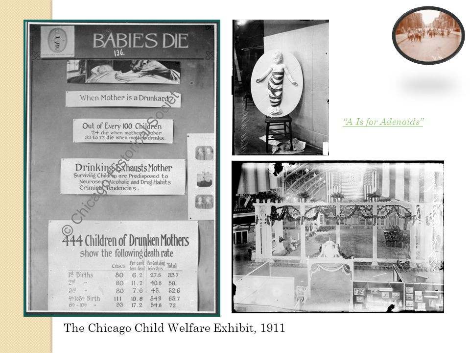 The Chicago Child Welfare Exhibit, 1911 A Is for Adenoids