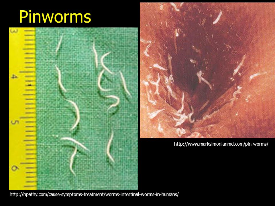 Pinworms http://www.marksimonianmd.com/pin-worms/ http://hpathy.com/cause-symptoms-treatment/worms-intestinal-worms-in-humans/