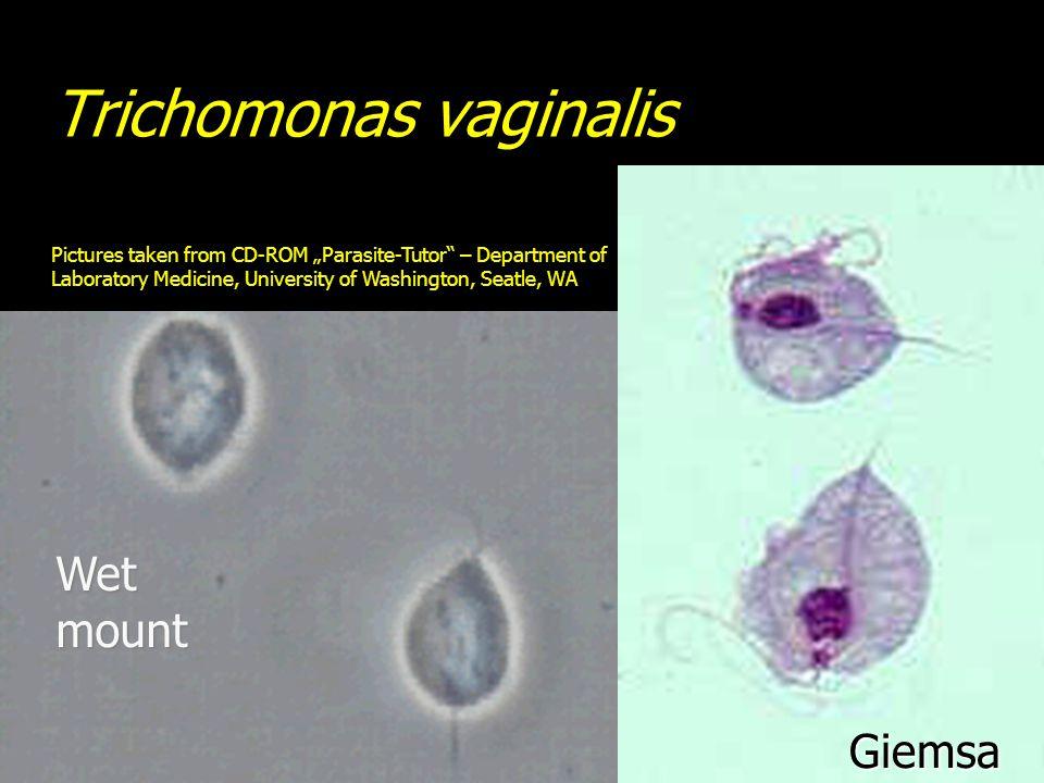 "Trichomonas vaginalis Pictures taken from CD-ROM ""Parasite-Tutor – Department of Laboratory Medicine, University of Washington, Seatle, WA Giemsa Wet mount"